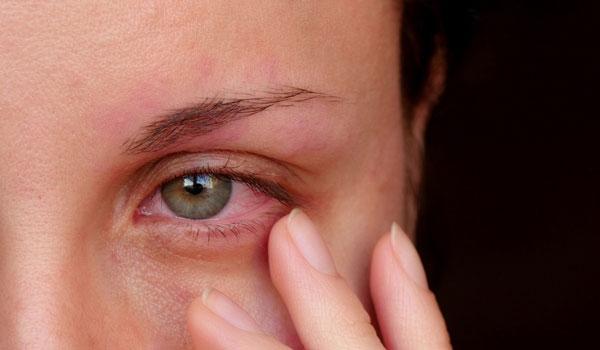 عوامل ایجاد کننده عارضه قرمزی چشم