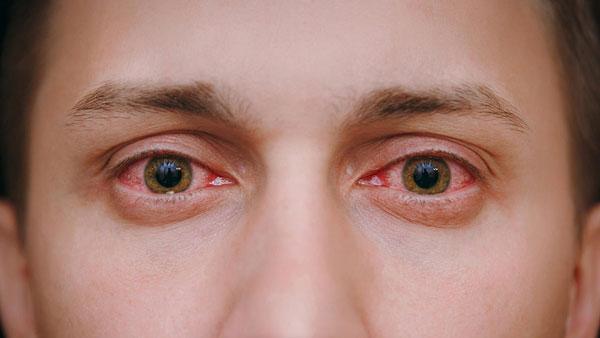 درمان قرمزی چشم در طب اسلامی