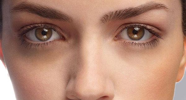 سرم ویتامین C و کاهش هاله تیره اطراف چشم