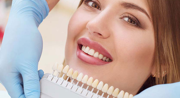 معایب لمینت دندان